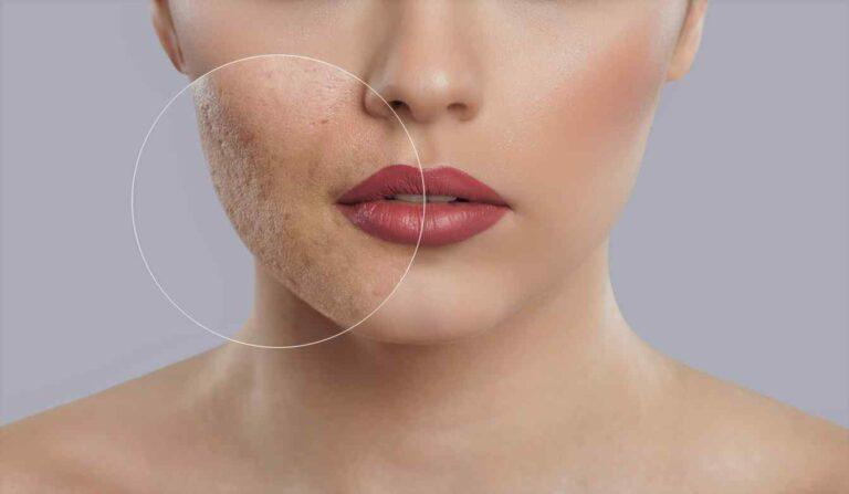 Melhores formas de tirar cicatrizes, se você quiser saber como curar melhor qualquer tipo de lesão, você deve ler este artigo.